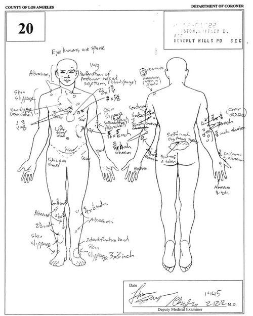 Ciało Whitney Houston było poparzone gorącą wodą
