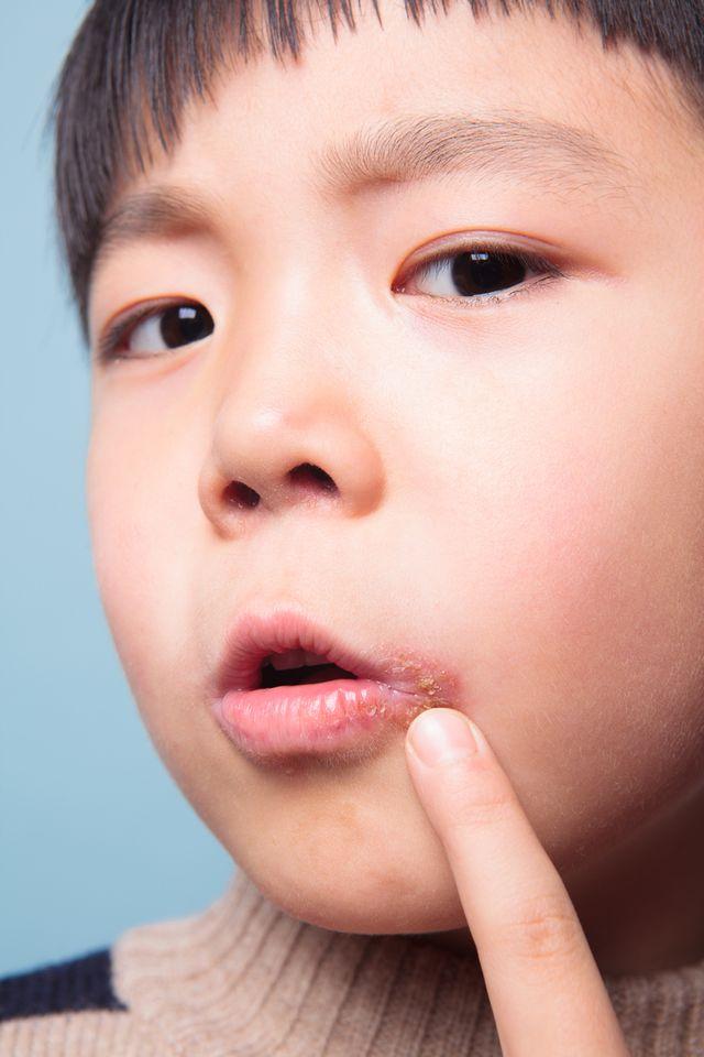 Skąd się biorą zajady na ustach i jak je szybko wyleczyć?