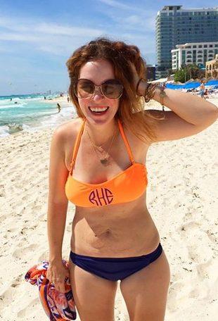 Mam rozstępy i noszę bikini! (FOTO)