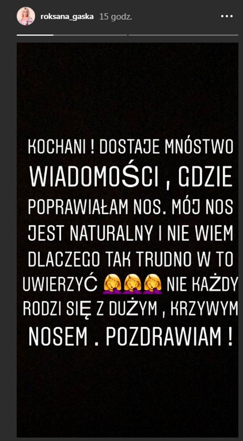 Wściekła Roxi Gąska przyznaje: mój nos jest NATURALNY, pośladki i POLICZKI też!