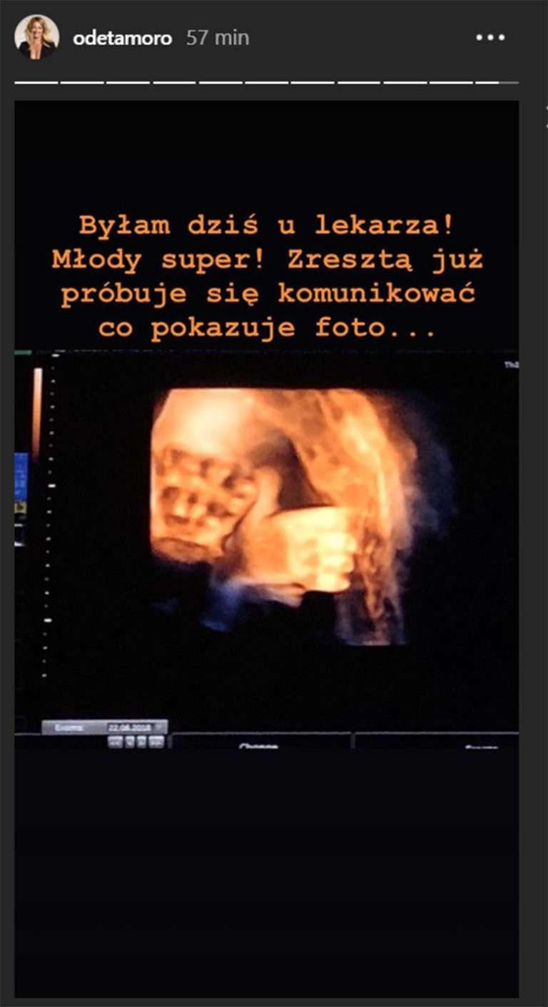 Odeta Moro pokazała PIERWSZE zdjęcie synka!