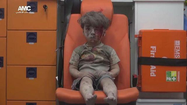 Tragedia tego dziecka jest wstrząsająca (VIDEO)