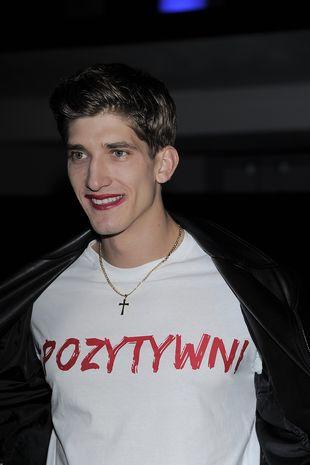OMG! Co ma na twarzy Michał Baryza? (FOTO)
