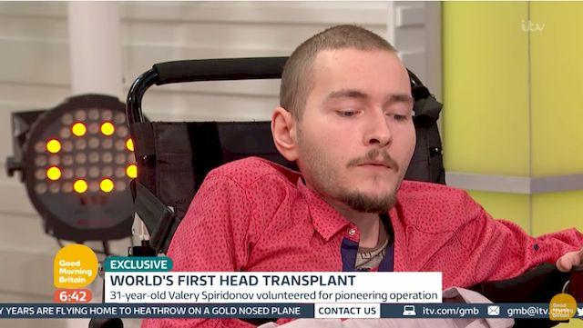 Transplantacja CAŁEJ GŁOWY jest możliwa?! Lekarze chcą siętego podjąć! (VIDEO)