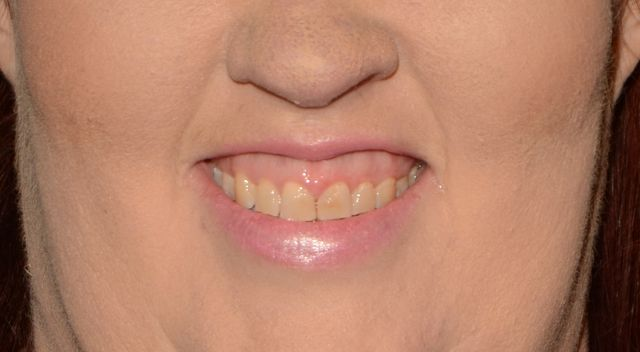 Mama June wydała 10 tysięcy dolarów na nowe zęby