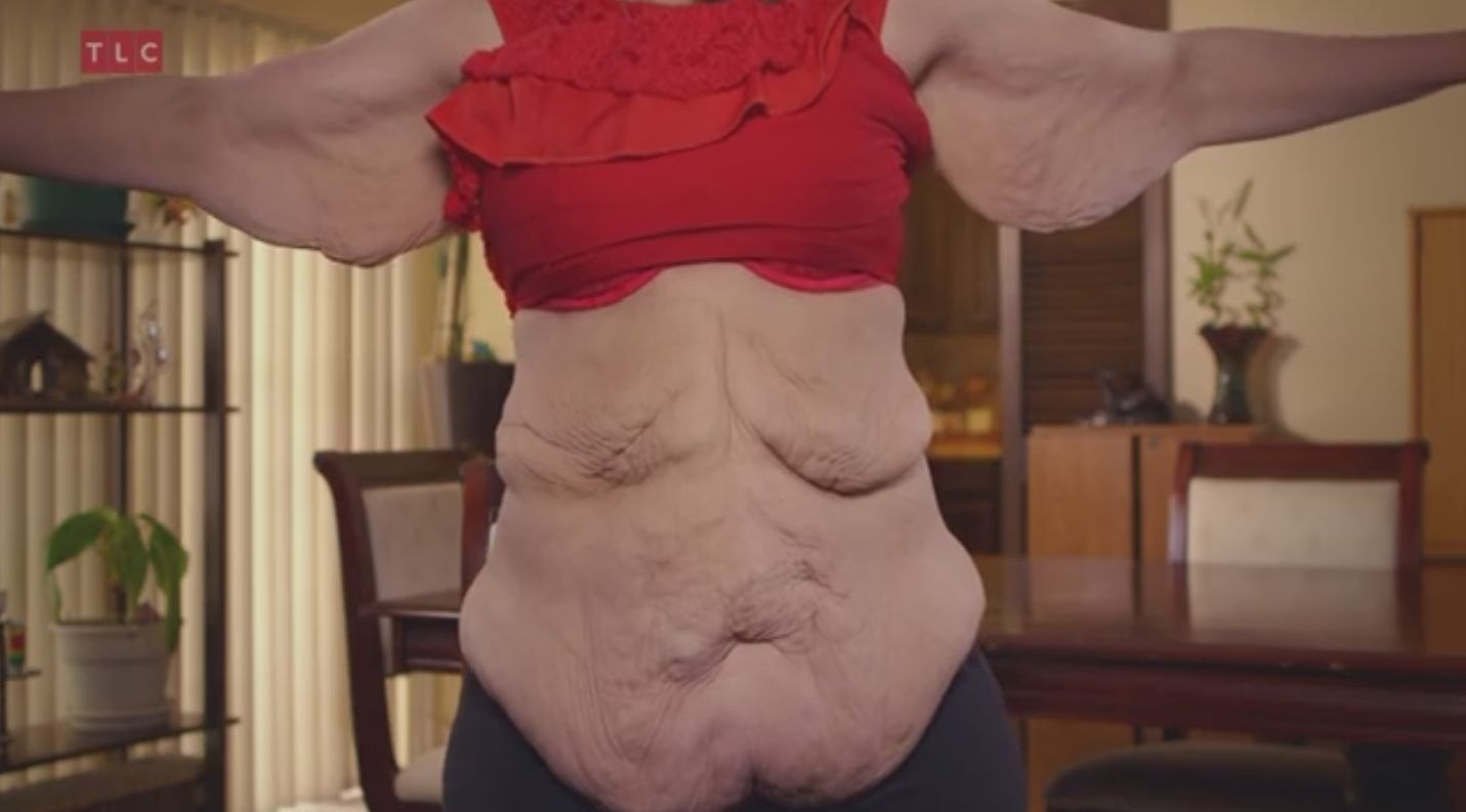 Choć schudła ponad 100 kg, wciąż nie może na siebie patrzeć!
