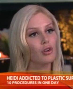 Jessica Simpson: W Brazylii widziałam gorsze od Heidi Montag