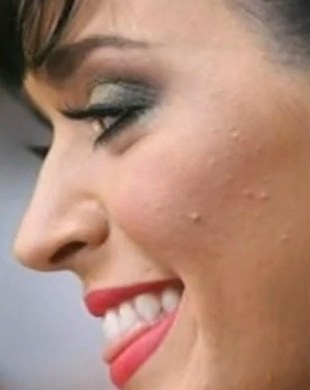 Katy Perry: specyfiki przeciw trądzikowi nie działają
