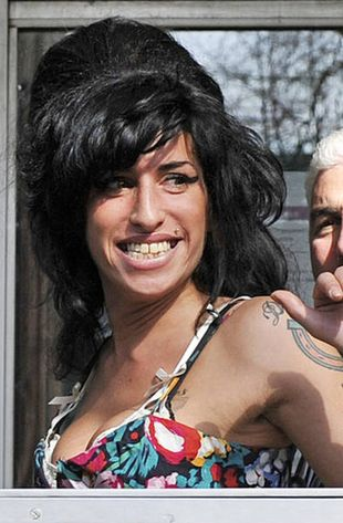 Amy Winehouse chce mieć operację nosa