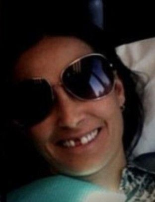 Demi Moore bez zęba (FOTO)