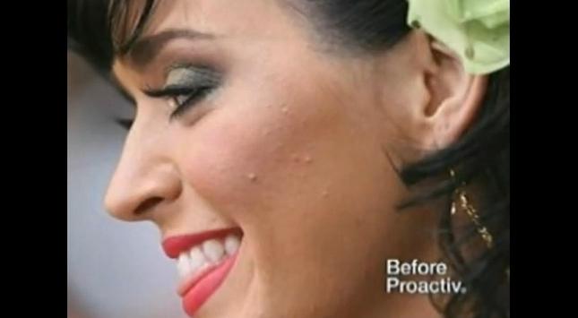 Katy Perry reklamuje preparat przeciwko trądzikowi [VIDEO]