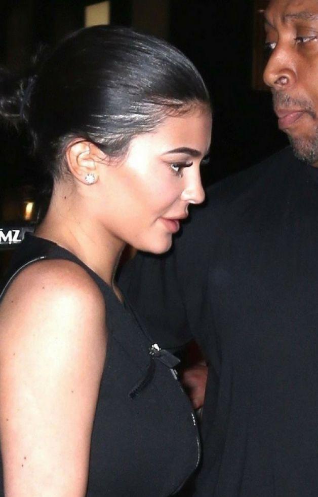 Znamy PRAWDZIWY powód, przez który Kylie Jenner usunęła wypełniacze z ust!