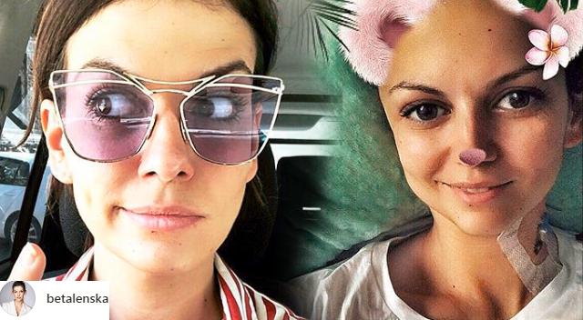 Alżbeta Lenska o swojej bliźnie: wydawało mi się, że wyglądam jak KOSMITKA!
