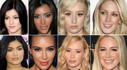 Zdjęcia gwiazd przed i po operacjach plastycznych