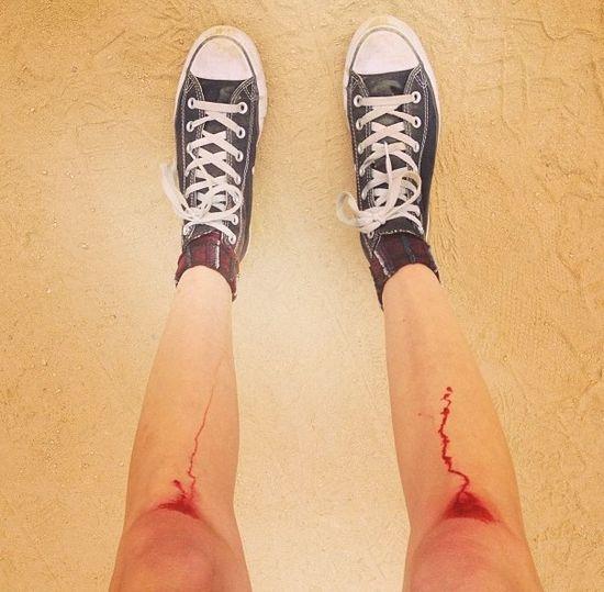 Czyje są te krwawiące nogi? (FOTO)