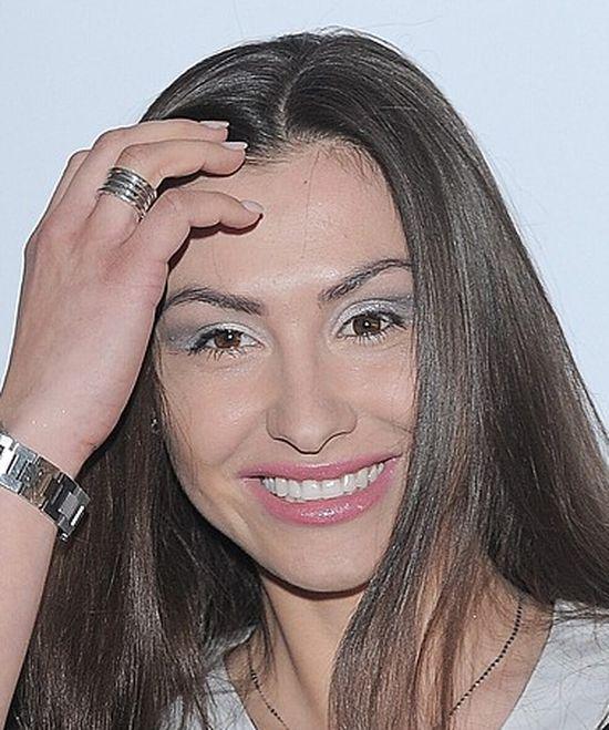 Co Angelika Fajcht robi�a z twarz�? (FOTO)