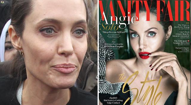 Angelina Jolie przyznała się do choroby, którą WIDAĆ NA TWARZY