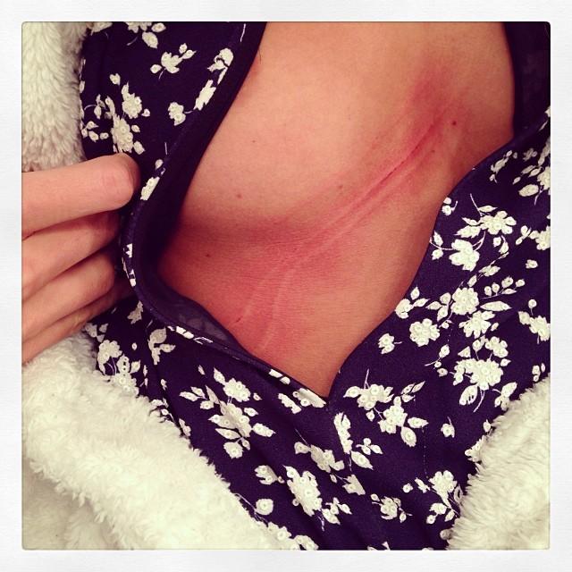 Anja Rubik pokazuje szramę na piersi (FOTO)