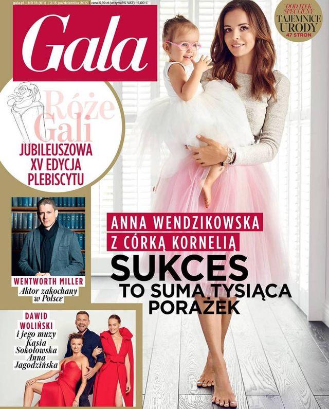 Anna Wendzikowska w Gali o operacji wady wzroku córki