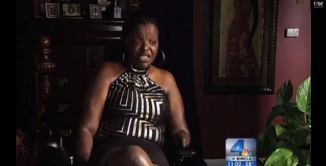 Chciała powiększyć pośladki, została kaleką (FOTO+VIDEO)