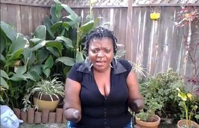 Chcia�a powi�kszy� po�ladki, zosta�a kalek� (FOTO+VIDEO)