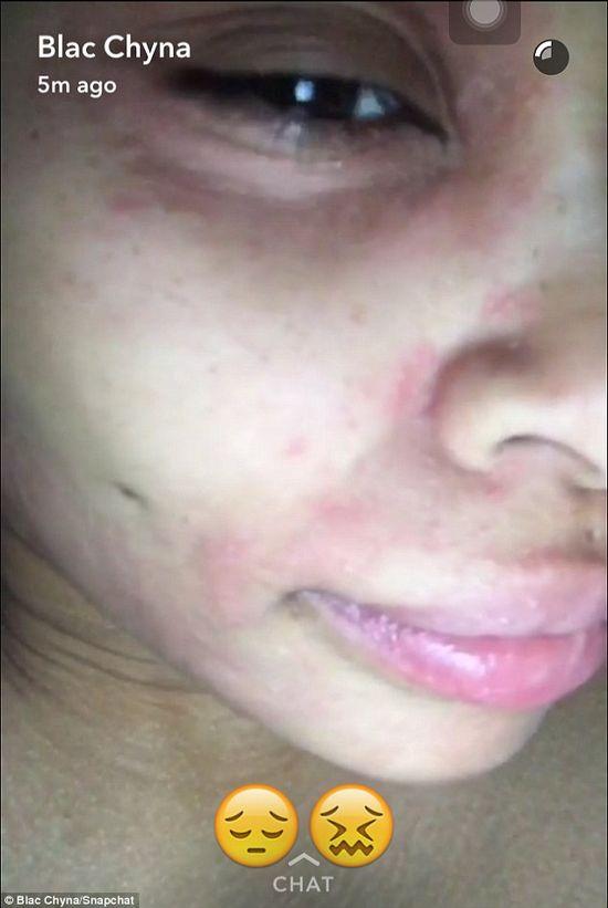 Blac Chyna opublikowała zdjęcie po nieudanym zabiegu kosmetycznym (FOTO)