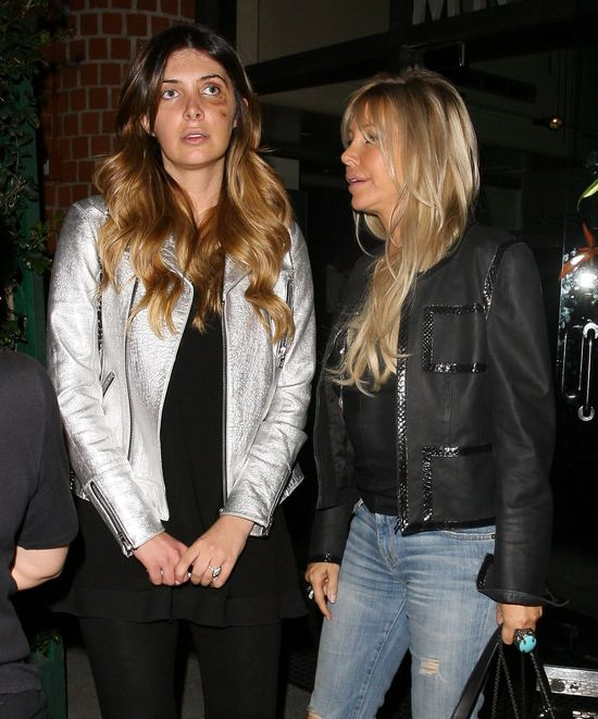 Przyjaciółka Kim Kardashian chodzi z limo pod okiem (FOTO)