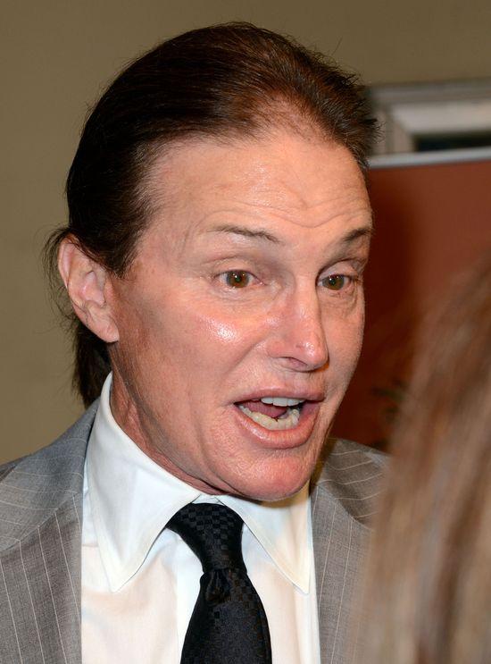 Bruce Jenner jest uzależniony od operacji plastycznych!