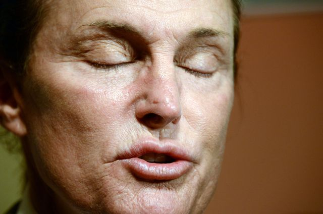 Bruce Jenner idzie na operację mniejszenia jabłka Adama!