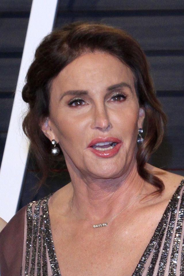 To, co stało się z twarzą Caitlyn Jenner powinno być przestrogą dla wszystkich!