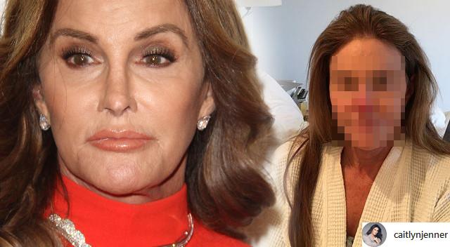 To, co stało się z twarzą Caitlyn Jenner to przestroga dla nas wszystkich!