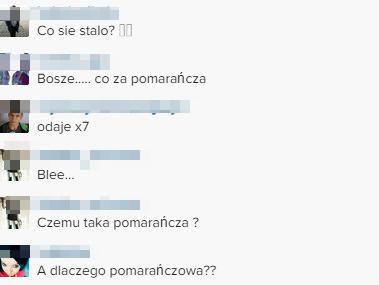 Natalia Siwiec przesadziła z opalaniem? (FOTO)