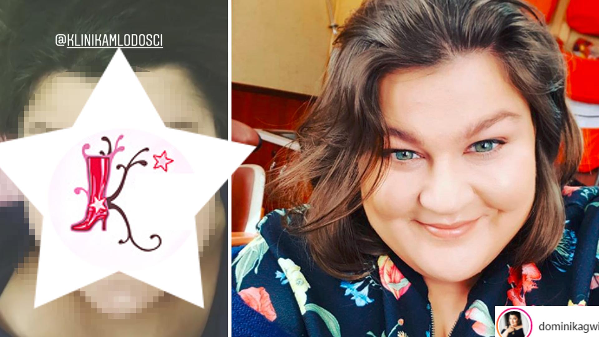 Dominika Gwit pokazała się BEZ makijażu! Przeszła METAMORFOZĘ!