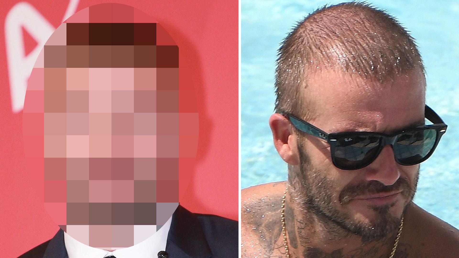David Beckham miał PRZESZCZEP włosów! Zobaczcie, jak teraz wygląda!