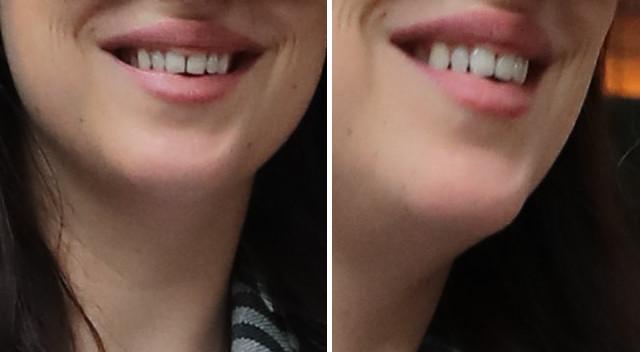 Rodzice - znani aktorzy nie zadbali o ortodontę dla córki? (ZDJĘCIA)