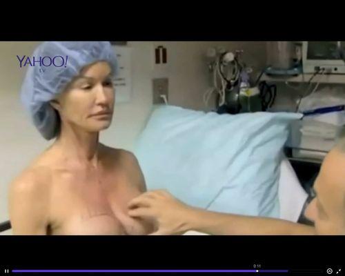 Zmieniła swoje 30-letnie implanty na oczach widzów [VIDEO]