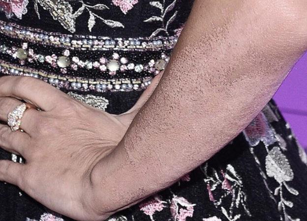 Tak wygląda ręka Dody po usunięciu dużego tatuażu