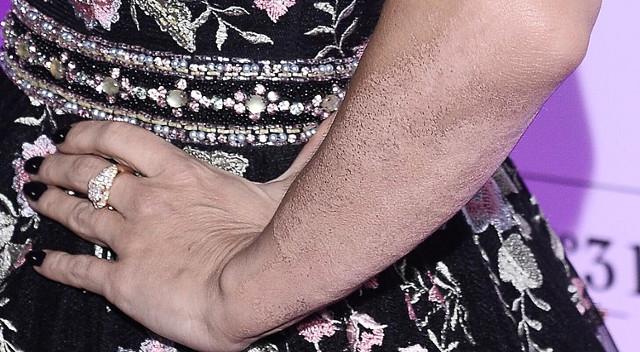 Tak wygląda ręka Dody po usunięciu dużego tatuażu (ZDJĘCIA)