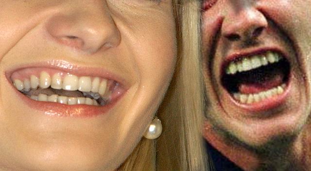 TE gwiazdy miały TRAGICZNE zęby!