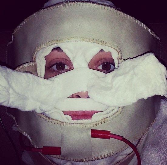Zabieg upiększający czy tortury? (FOTO)