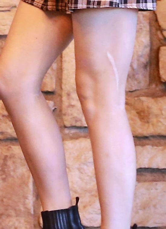 M�oda gwiazda ma na nodze wielk� blizn� (FOTO)