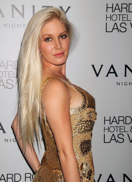 Heidi Montag: Żałuję wszystkich 10 operacji plastycznych!