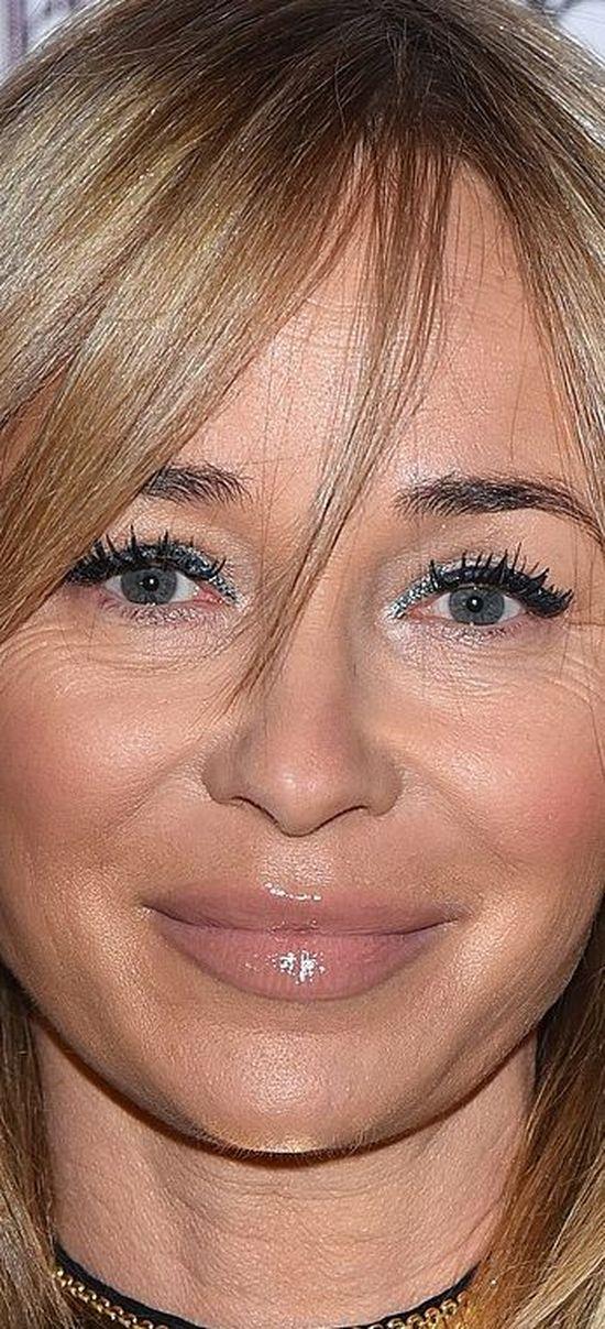 OMG! Co się stało z ustami Joanny Przetakiewicz? (FOTO)