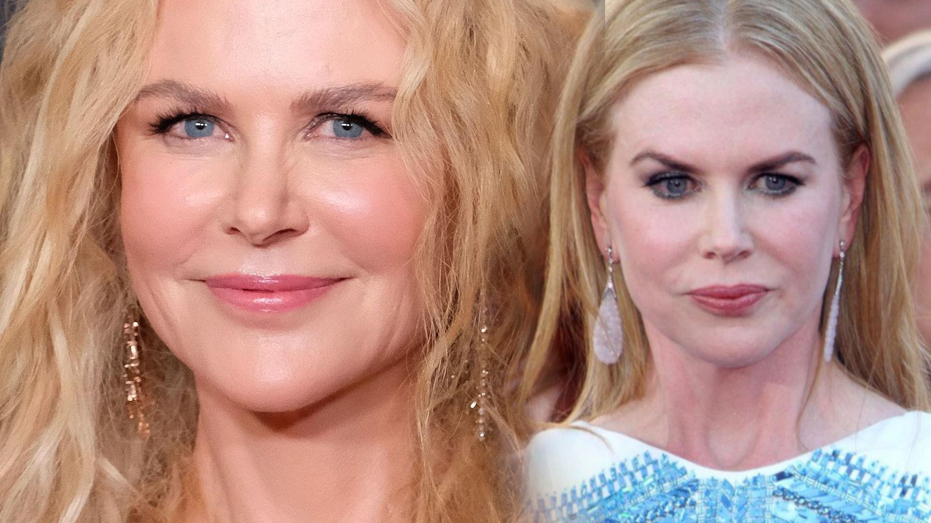Chirurg plastyczny wylicza, co zmieniła w twarzy Nicole Kidman