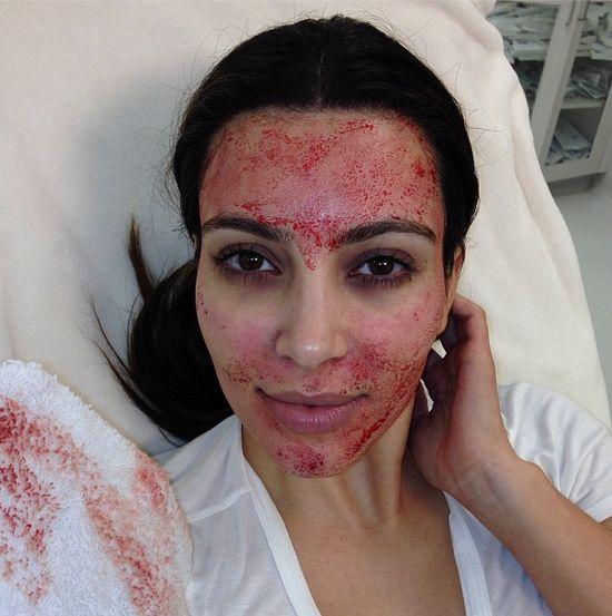 Kim Kardashian ze szpilkami w twarzy!