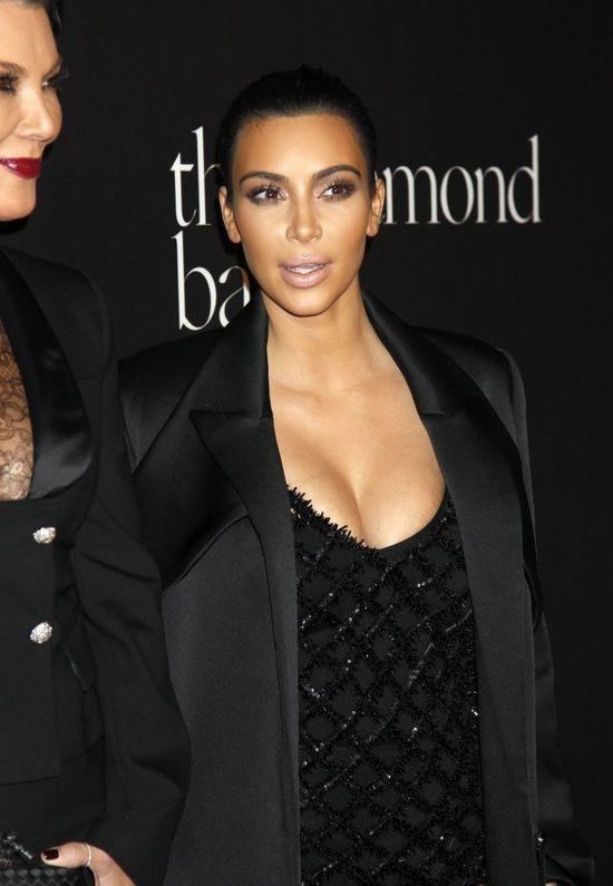 Chcecie zobaczyć Kim Kardashian z aparatem na zębach?