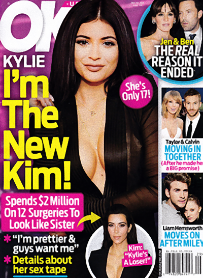 Kylie wydała 2 miliony dolarów, by upodobnić się do Kim!