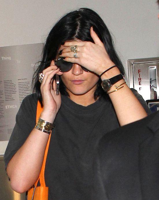 Kylie Jenner przejdzie drastyczn� operacj� twarzy?! (FOTO)