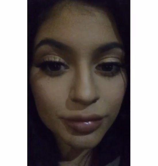 Tak spuchniętych ust Kylie Jenner jeszcze nie miała (FOTO)