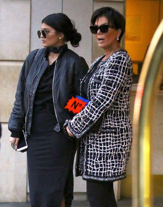 I co z tego, że Kylie Jenner ma ten defekt? (FOTO)